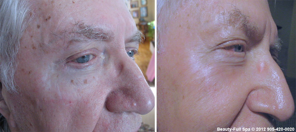 Bob Avis Before and After 2