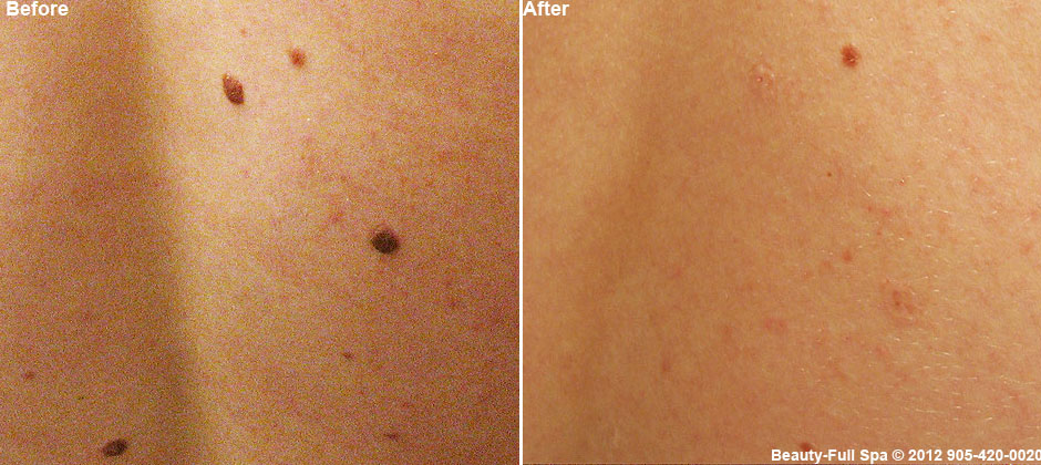 co2mole removal laser before and after Mole Elimination
